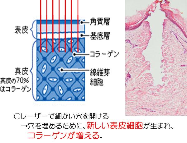 レーザーで細かい穴を開ける→穴を埋めるために、新しい表皮細胞が生まれ、コラーゲンが増える。