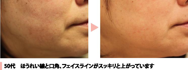 施術例50代 ほうれい線と口角