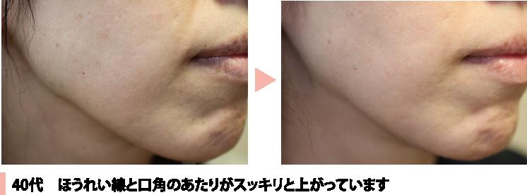 施術例40代 ほうれい線と口角がすっきり