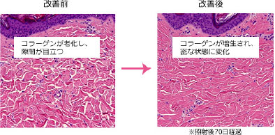 改善前 コラーゲンが老化し、隙間が目立つ→改善後 コラーゲンが増生され、密な状態に変化