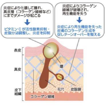 ビタミンCが活性酸素抑制・皮脂分泌調整し、炎症を抑制。炎症により再生機能を失った皮膚のコラーゲン生成を促しターンオーバーを整える
